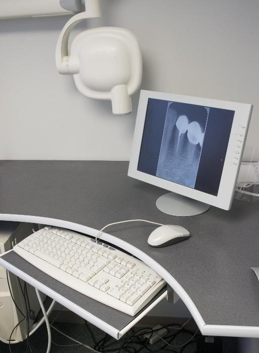 Computer with Digital X-Ray showing on screen I Digital X-Ray at William T. McMaugh DDS