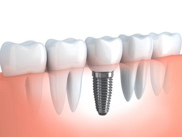 Dental Implant | Harleysville, PA Dentist