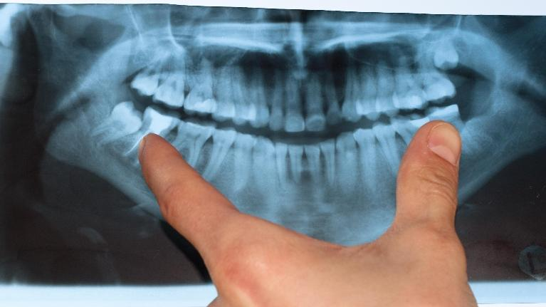 Dental emergencies in Harleysville, PA