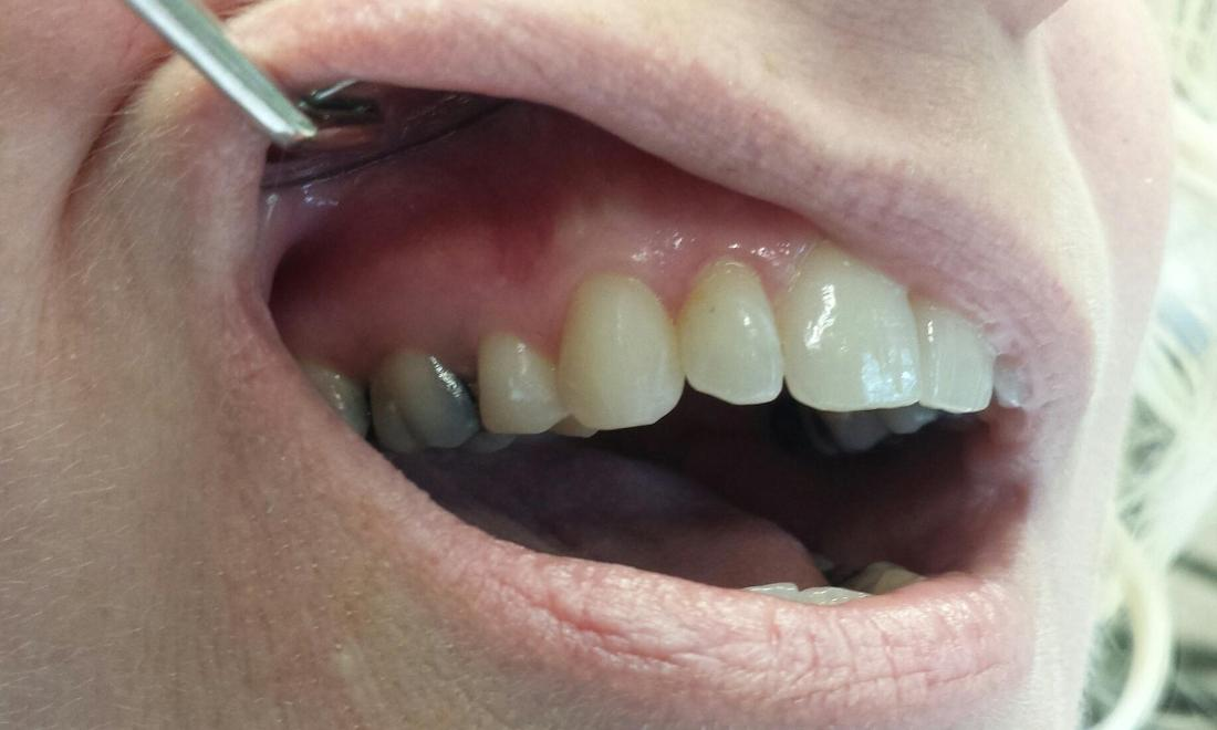 new composite fillings I William T. McMaugh, DDS